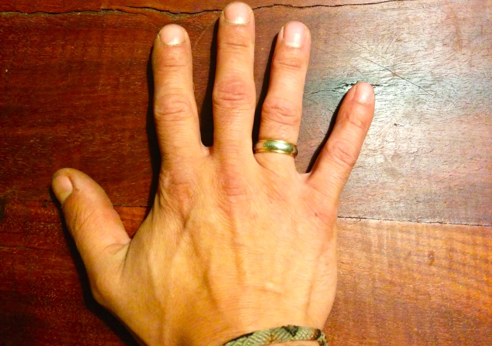 Wedding ring worn on right hand.